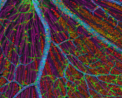 An image of a retina as seen under an electron microscope.  Image created by Thomas Deerinck