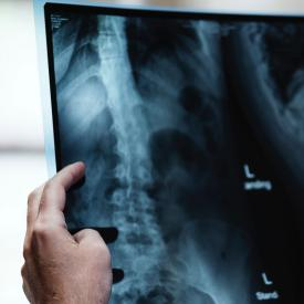 Man examines an x-ray